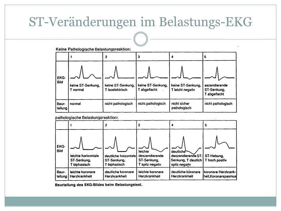 ST-Veränderungen im Belastungs-EKG
