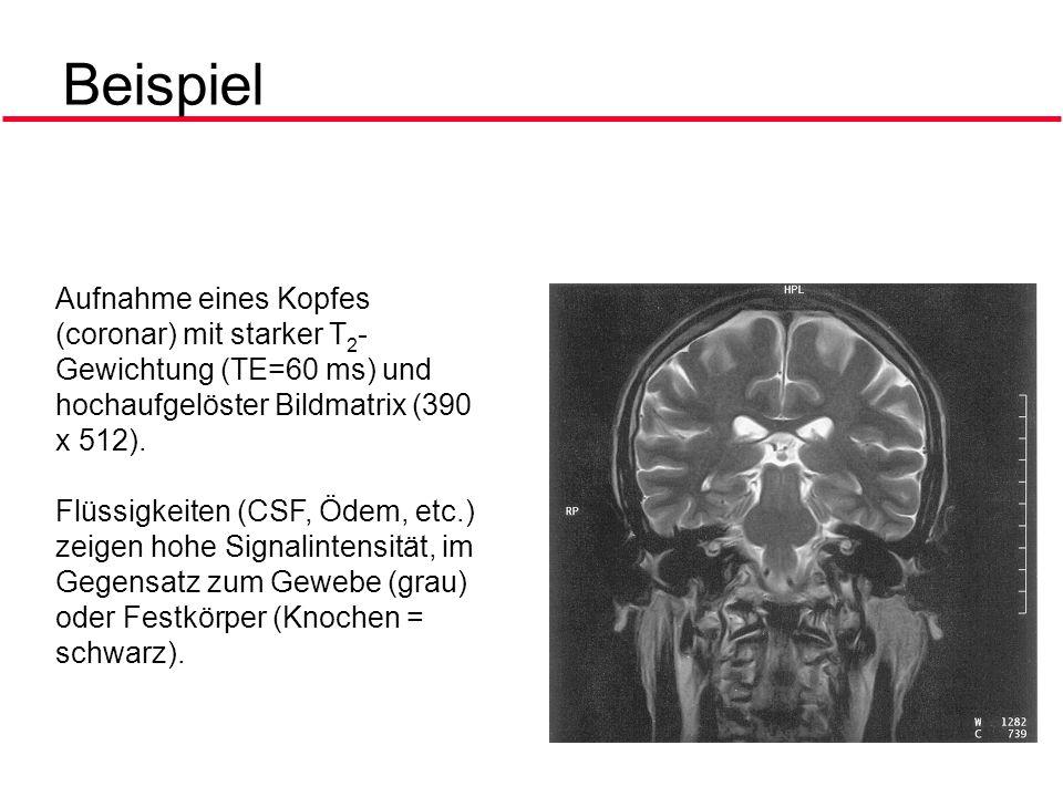 Beispiel Aufnahme eines Kopfes (coronar) mit starker T2-Gewichtung (TE=60 ms) und hochaufgelöster Bildmatrix (390 x 512).