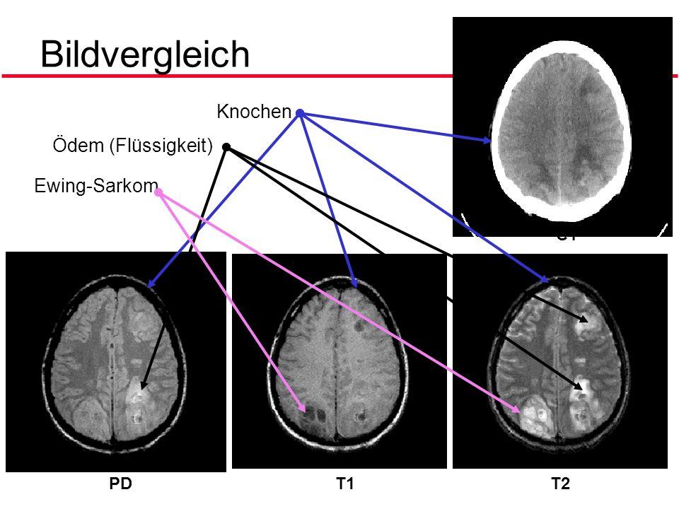 Bildvergleich Knochen Ödem (Flüssigkeit) Ewing-Sarkom CT PD T1 T2