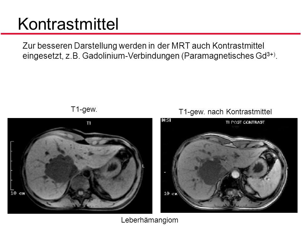 Kontrastmittel Zur besseren Darstellung werden in der MRT auch Kontrastmittel eingesetzt, z.B. Gadolinium-Verbindungen (Paramagnetisches Gd3+).