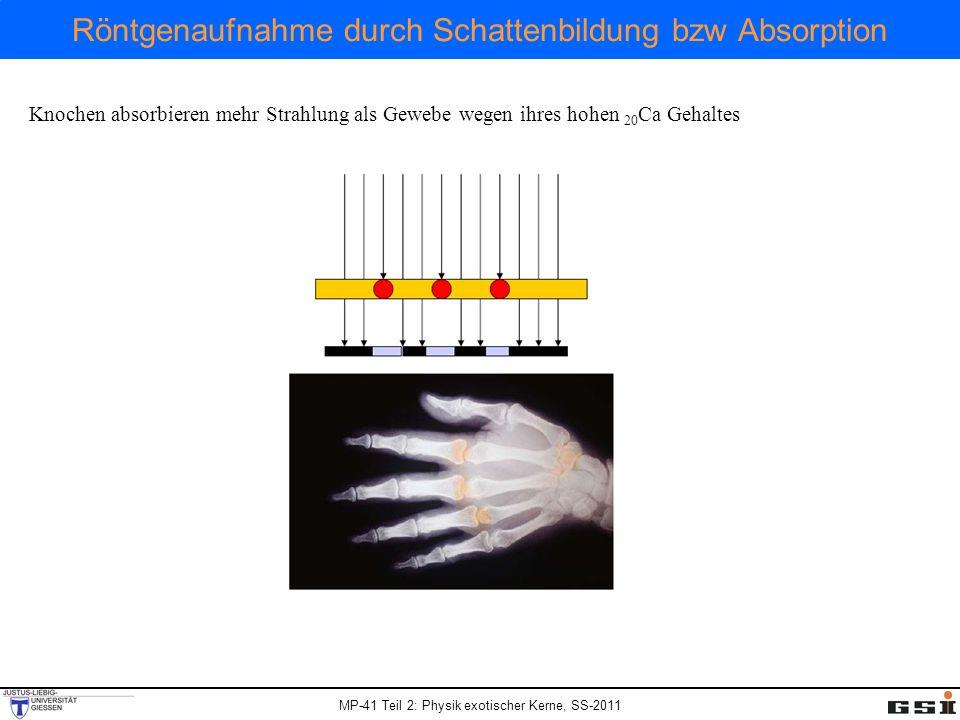 Röntgenaufnahme durch Schattenbildung bzw Absorption