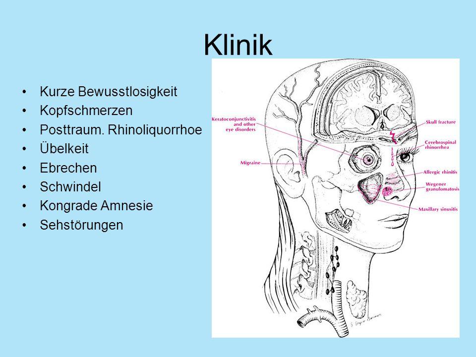 Klinik Kurze Bewusstlosigkeit Kopfschmerzen Posttraum. Rhinoliquorrhoe