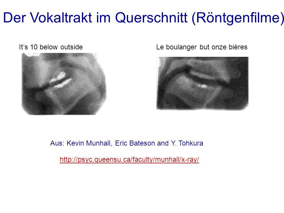 Der Vokaltrakt im Querschnitt (Röntgenfilme)