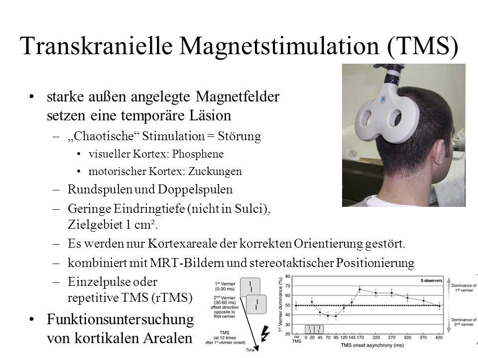 Transkranielle Magnetstimulation (TMS)