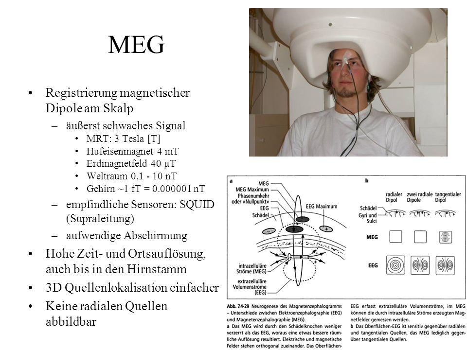 MEG Registrierung magnetischer Dipole am Skalp