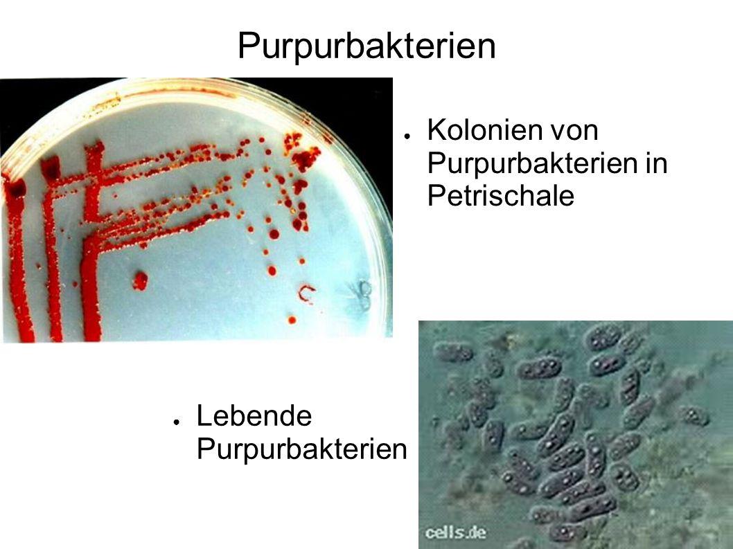 Purpurbakterien Kolonien von Purpurbakterien in Petrischale