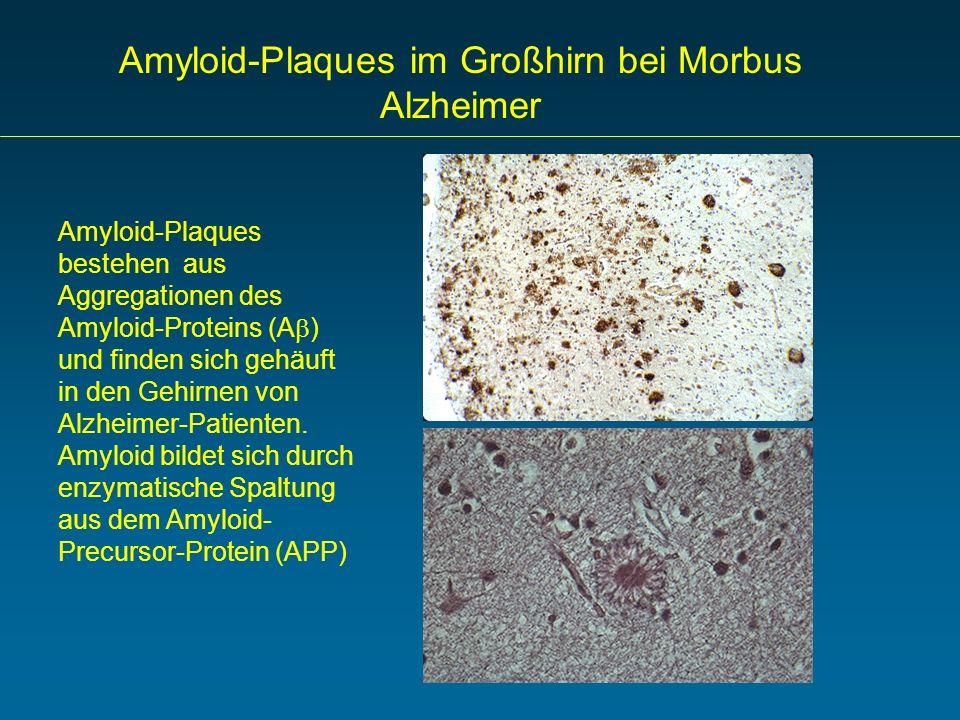Amyloid-Plaques im Großhirn bei Morbus Alzheimer