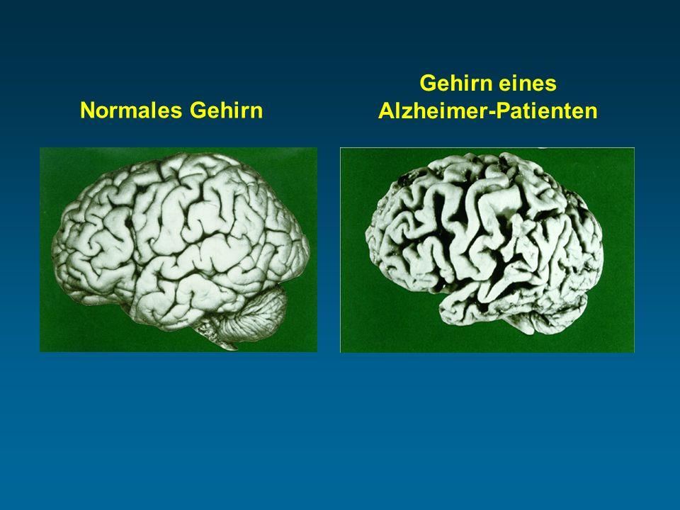 Gehirn eines Alzheimer-Patienten