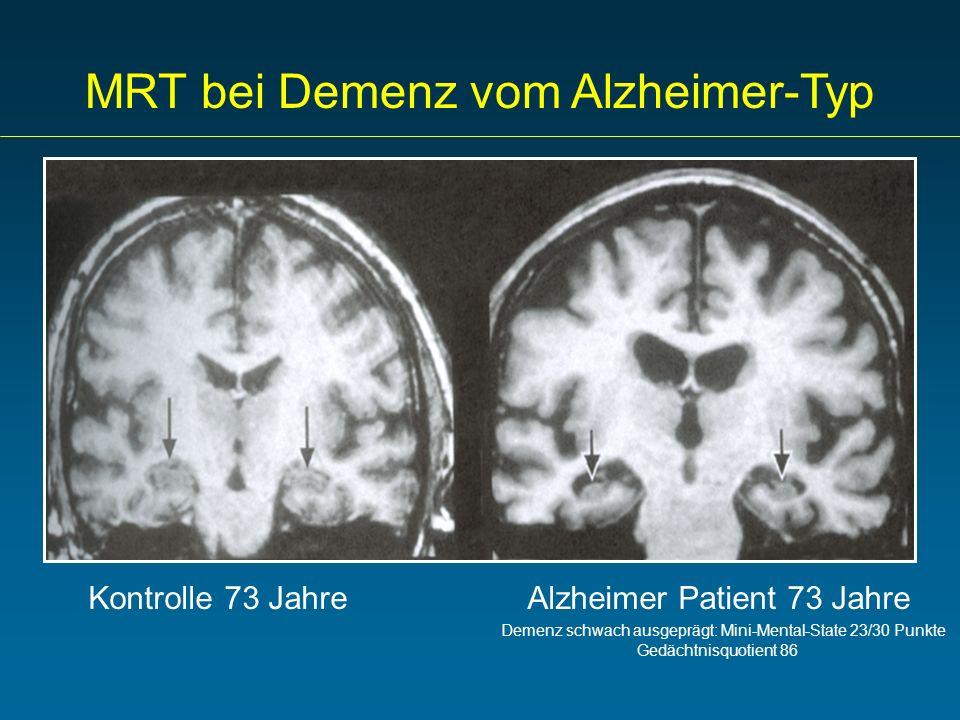 MRT bei Demenz vom Alzheimer-Typ