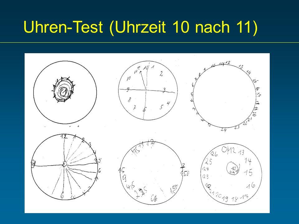 Uhren-Test (Uhrzeit 10 nach 11)