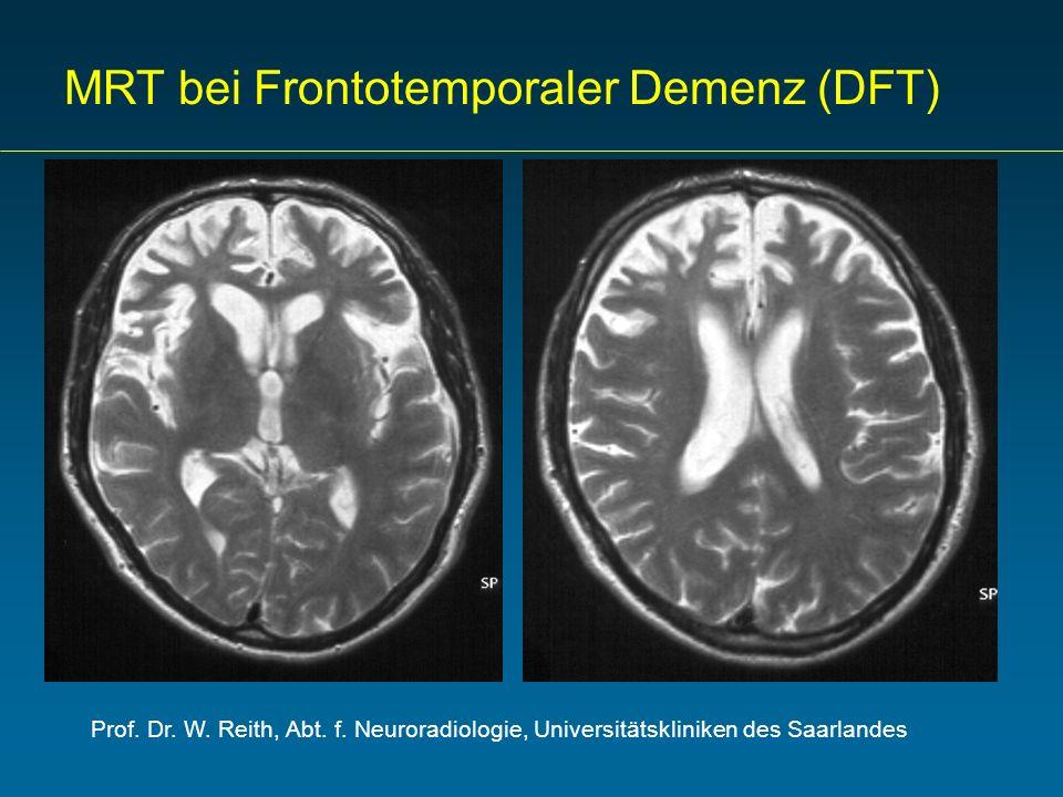 MRT bei Frontotemporaler Demenz (DFT)