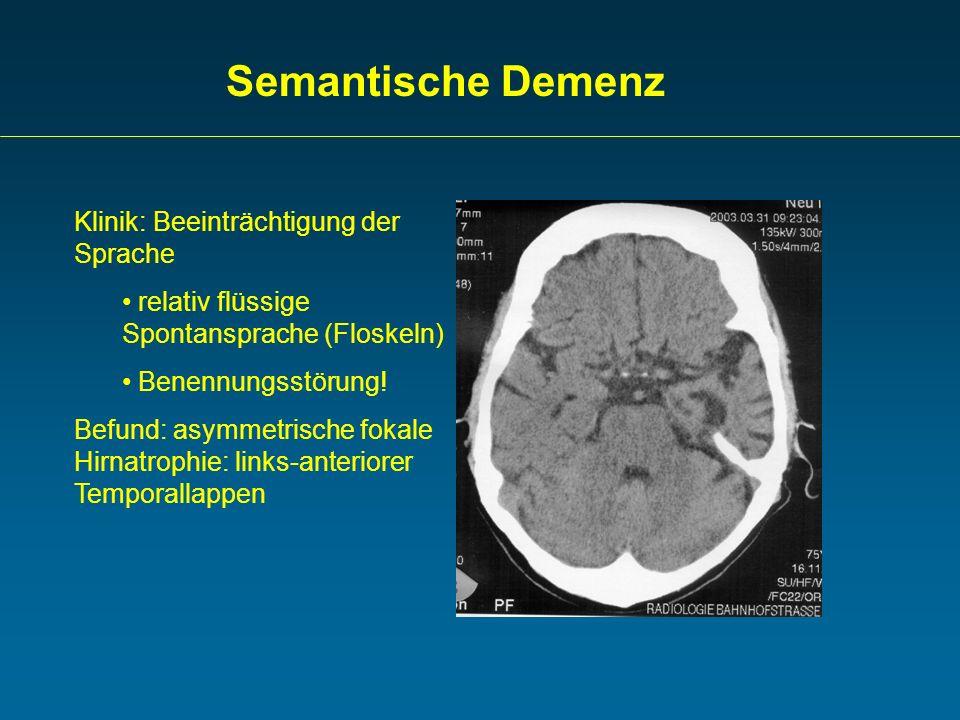 Semantische Demenz Klinik: Beeinträchtigung der Sprache