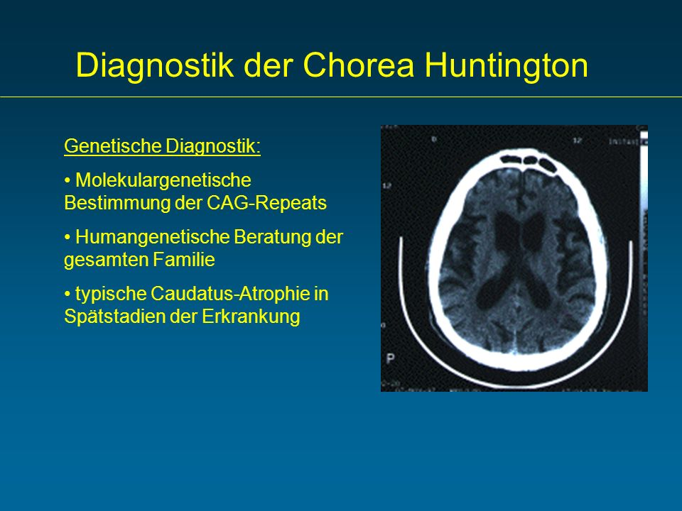 Diagnostik der Chorea Huntington