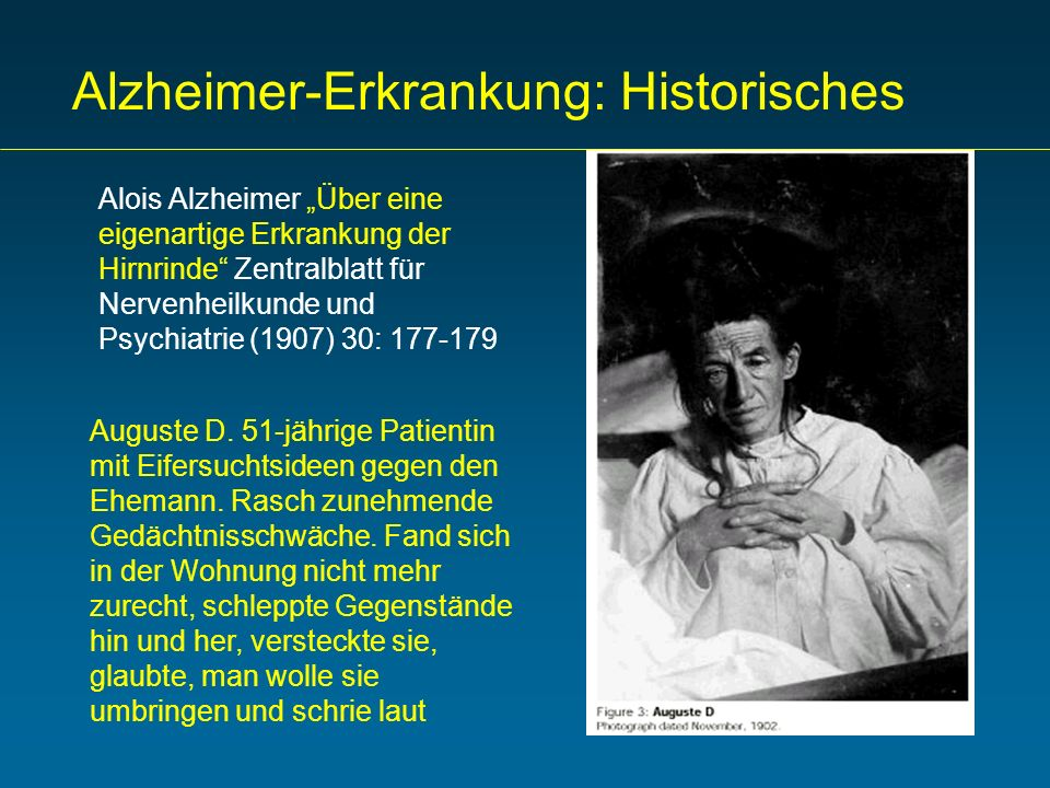 Alzheimer-Erkrankung: Historisches