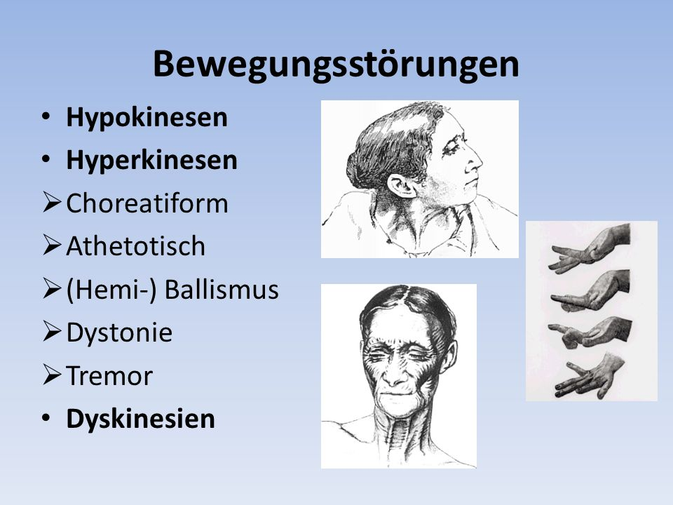 Bewegungsstörungen Hypokinesen Hyperkinesen Choreatiform Athetotisch