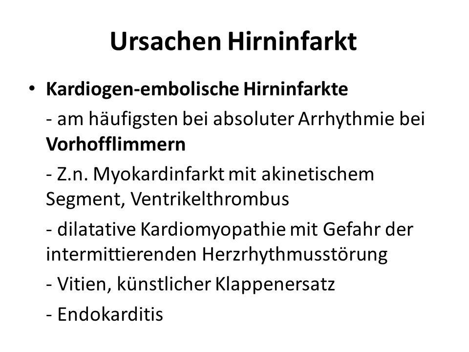 Ursachen Hirninfarkt Kardiogen-embolische Hirninfarkte
