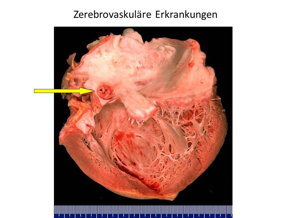 Tolle Vaskuläre Anatomie Und Physiologie Galerie - Menschliche ...