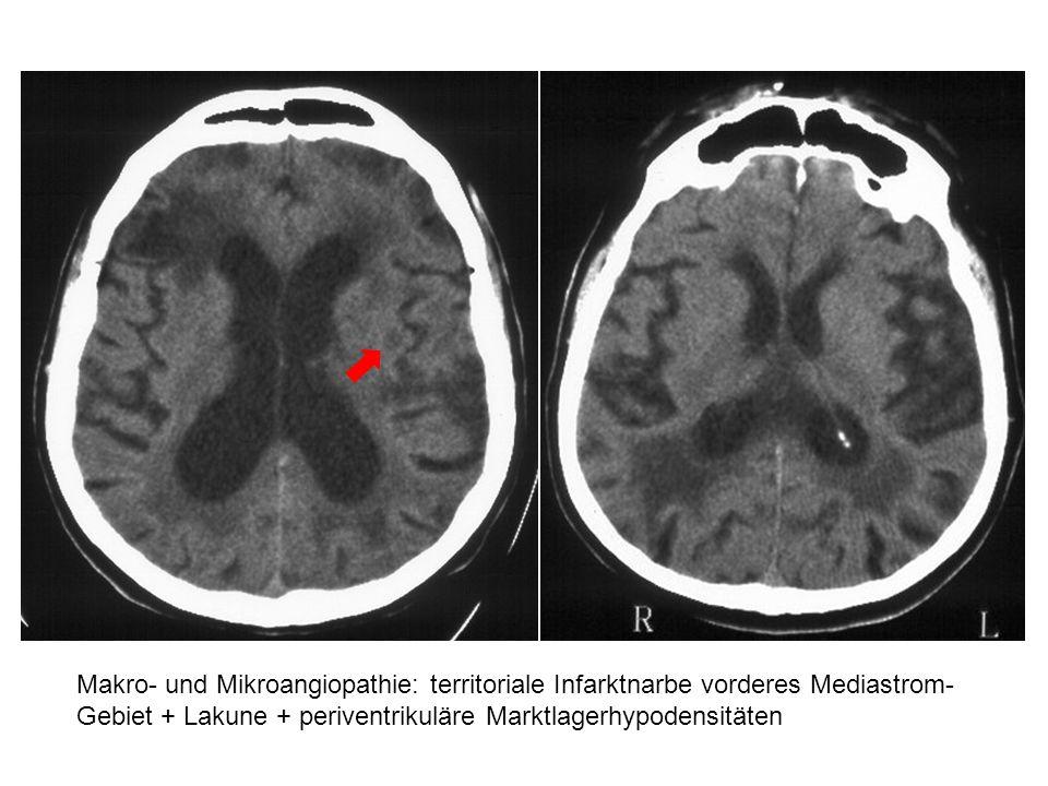 Makro- und Mikroangiopathie: territoriale Infarktnarbe vorderes Mediastrom-