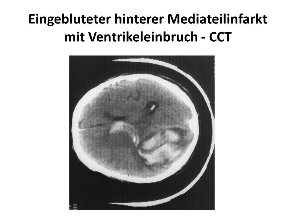 Eingebluteter hinterer Mediateilinfarkt mit Ventrikeleinbruch - CCT