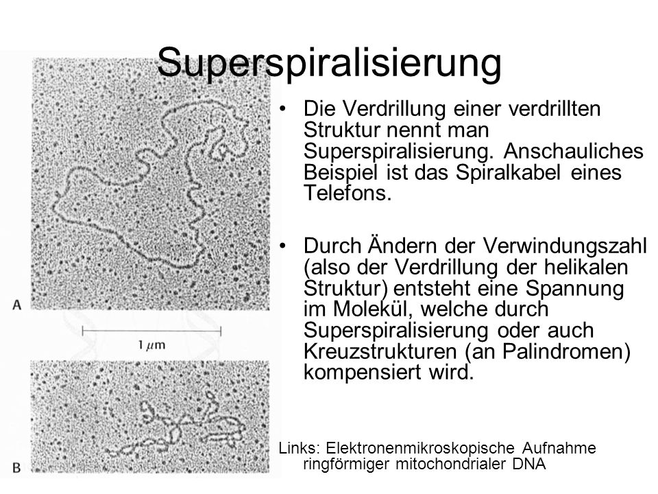 Superspiralisierung
