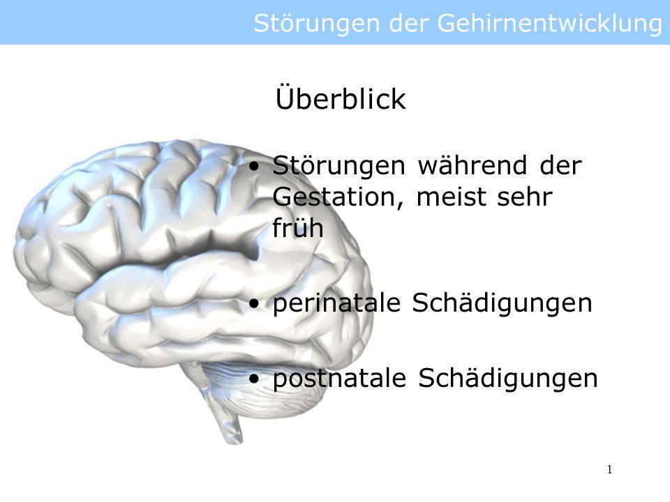Störungen der Gehirnentwicklung - ppt video online herunterladen