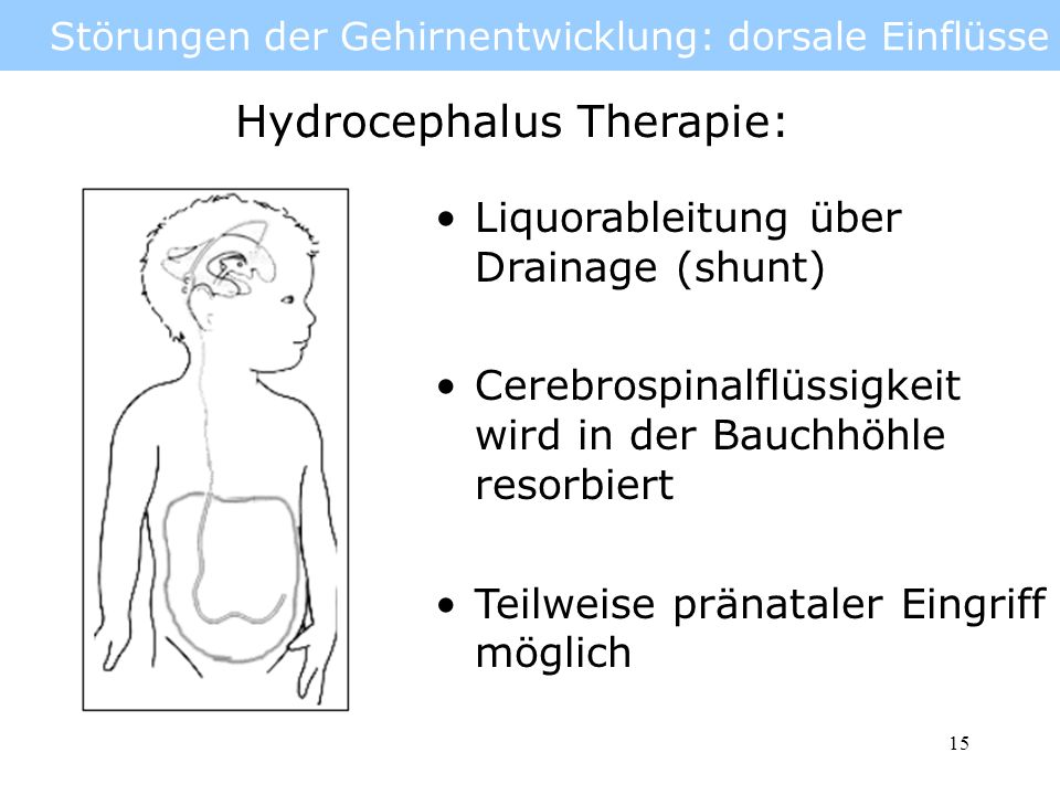 Störungen der Gehirnentwicklung: dorsale Einflüsse