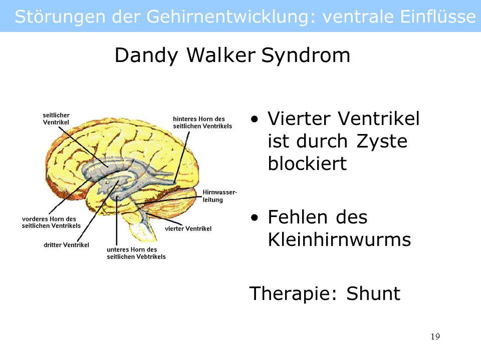 Störungen der Gehirnentwicklung: ventrale Einflüsse