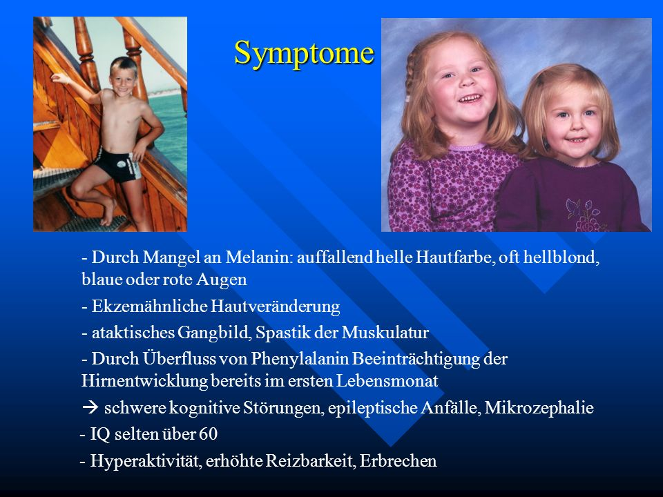 Symptome - Durch Mangel an Melanin: auffallend helle Hautfarbe, oft hellblond, blaue oder rote Augen.