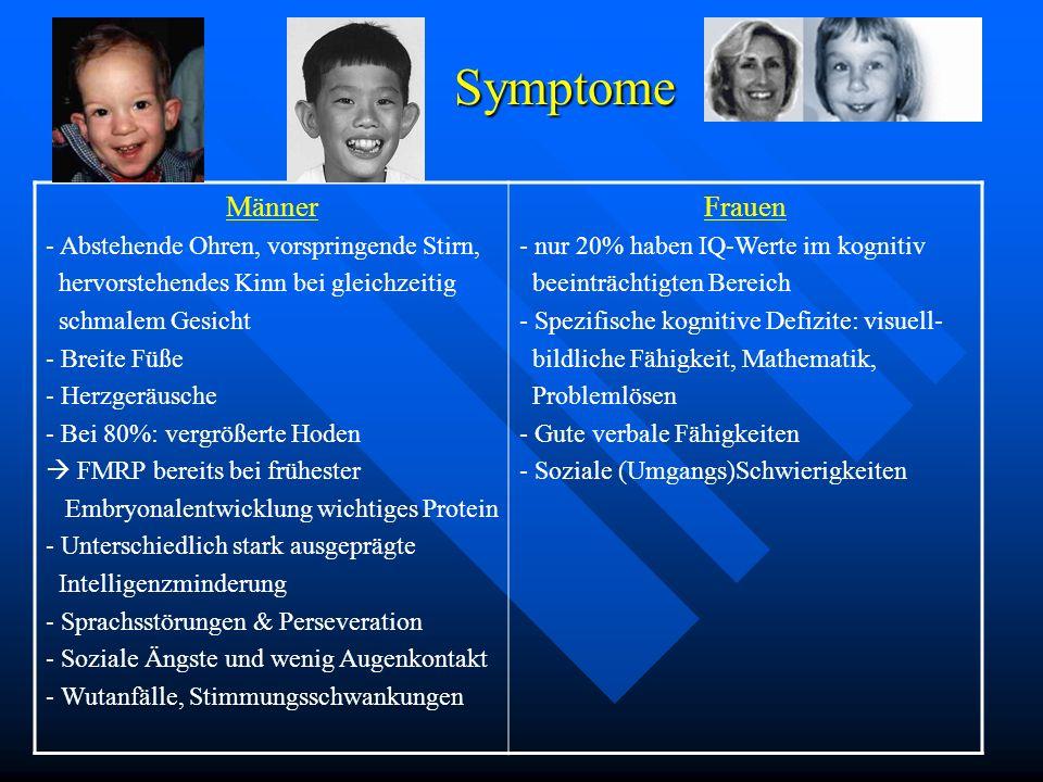 Symptome Männer Frauen - Abstehende Ohren, vorspringende Stirn,