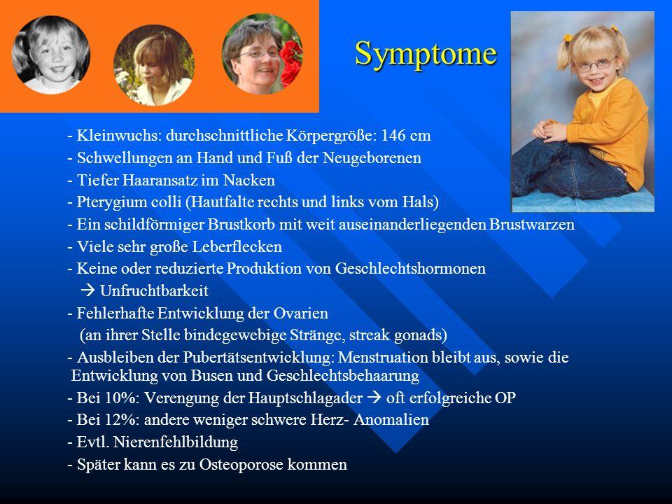 Symptome - Kleinwuchs: durchschnittliche Körpergröße: 146 cm