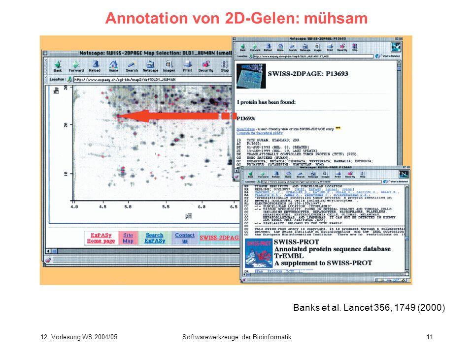 Annotation von 2D-Gelen: mühsam