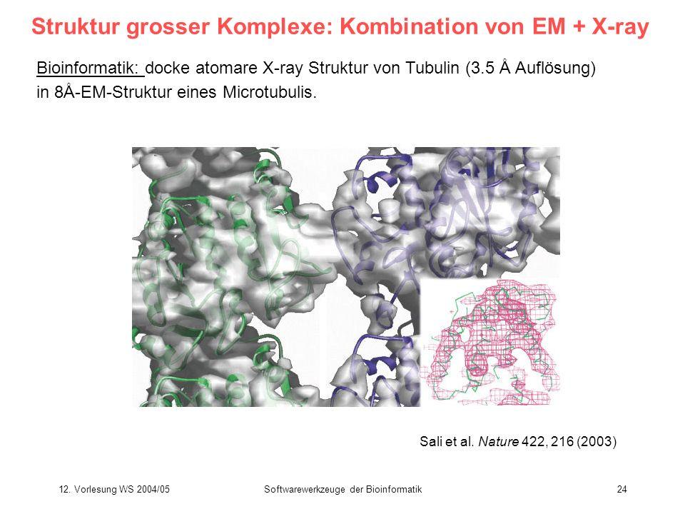 Struktur grosser Komplexe: Kombination von EM + X-ray