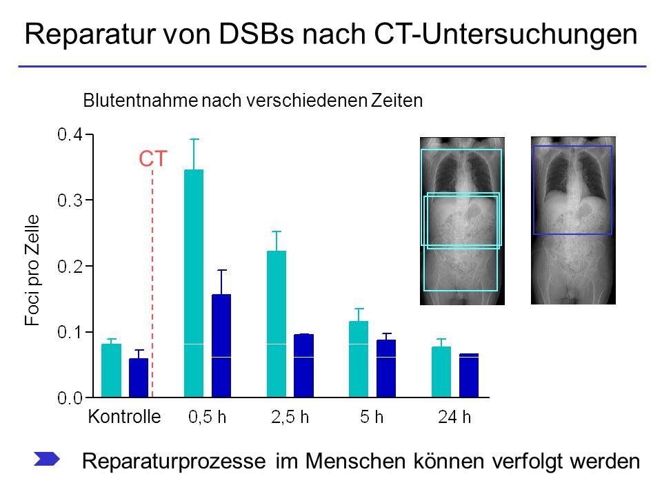 Reparatur von DSBs nach CT-Untersuchungen