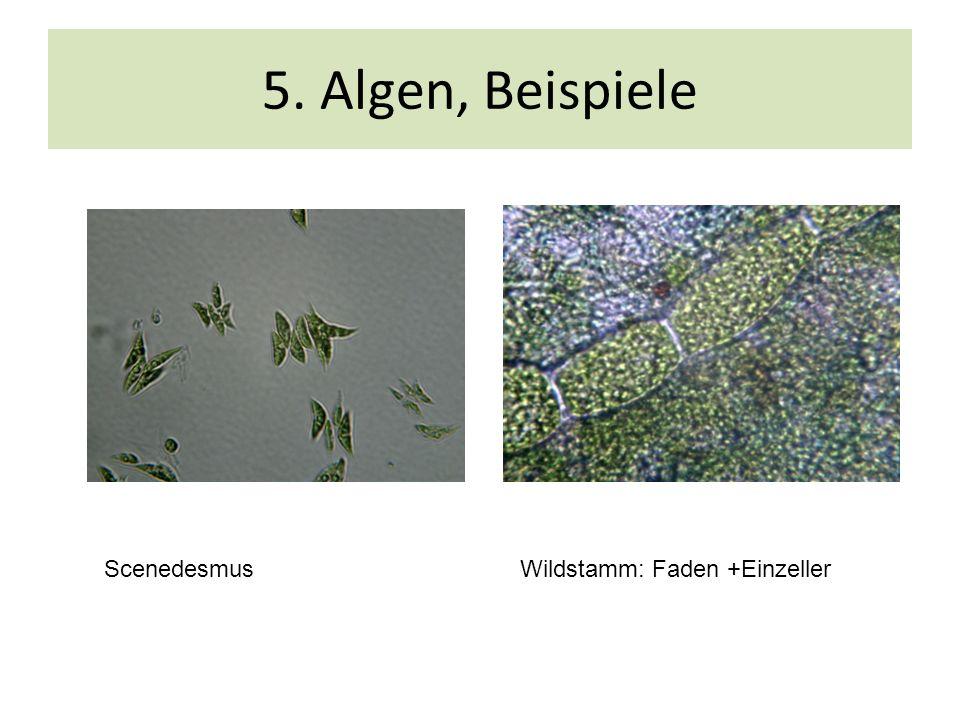 5. Algen, Beispiele Scenedesmus Wildstamm: Faden +Einzeller