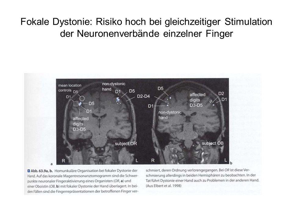 Fokale Dystonie: Risiko hoch bei gleichzeitiger Stimulation der Neuronenverbände einzelner Finger