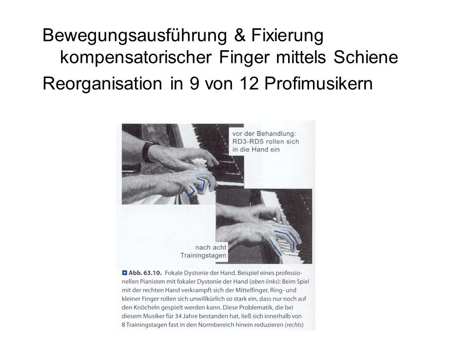 Bewegungsausführung & Fixierung kompensatorischer Finger mittels Schiene