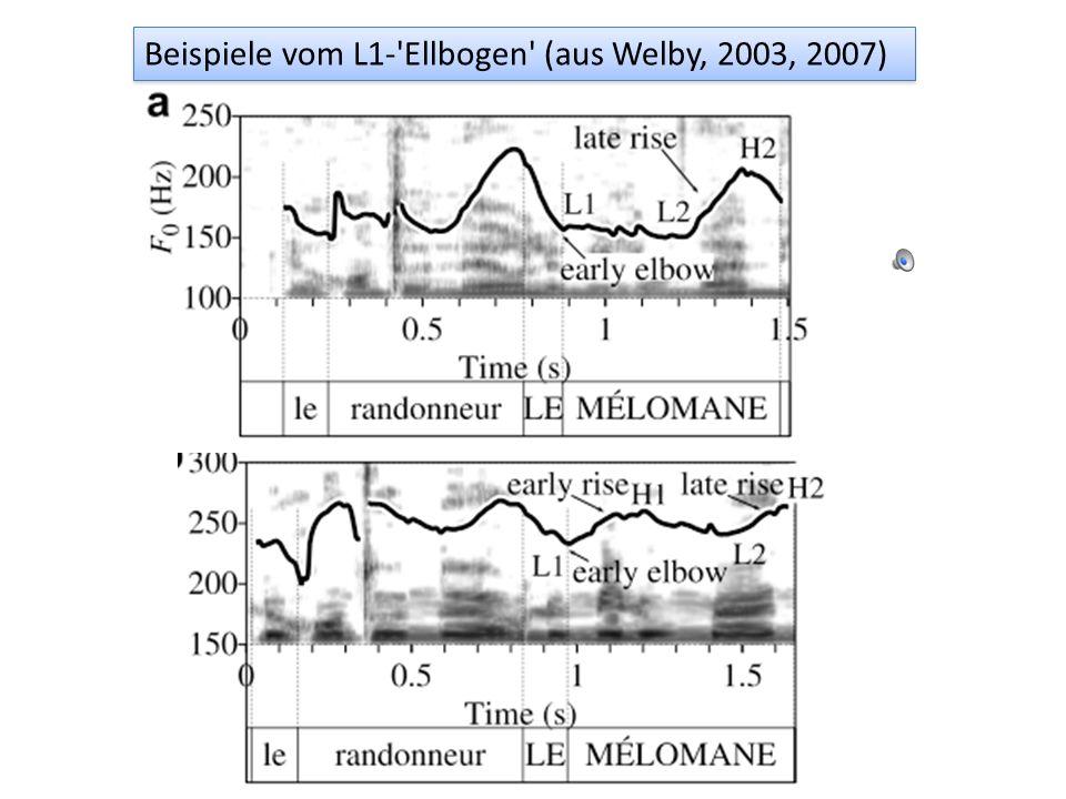 Beispiele vom L1- Ellbogen (aus Welby, 2003, 2007)
