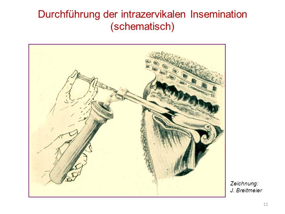 Durchführung der intrazervikalen Insemination (schematisch)