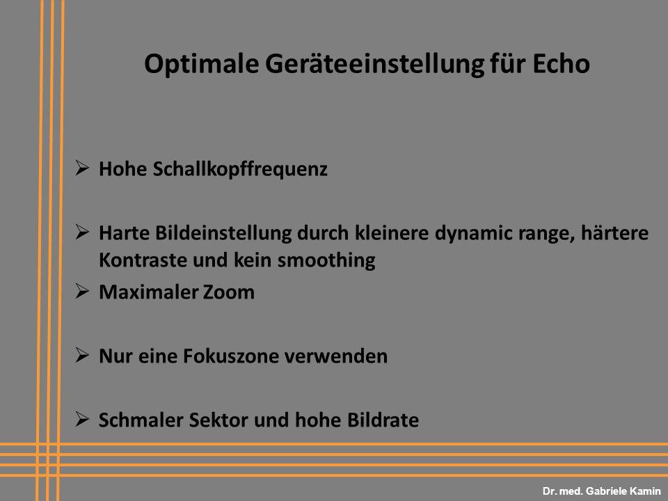 Optimale Geräteeinstellung für Echo