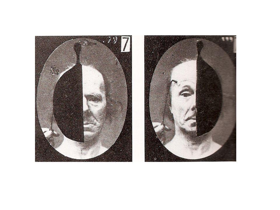 Stilmulation der Gesichtsmuskeln mit Elektroden (Salpetrière, um 1900)