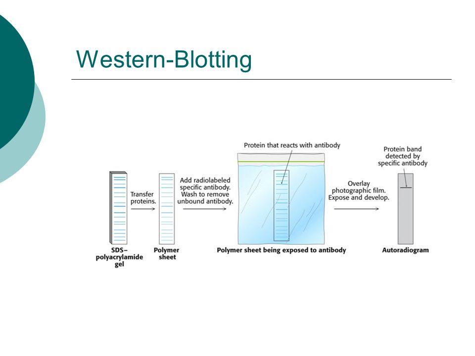 Western-Blotting