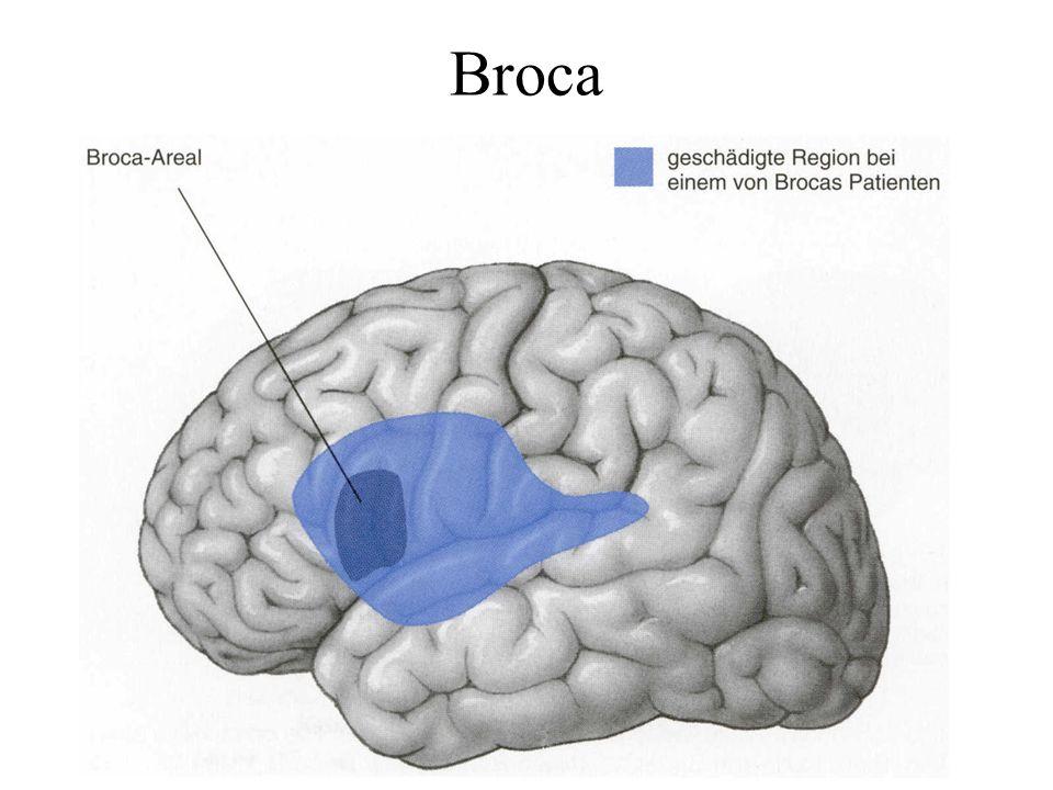 Broca