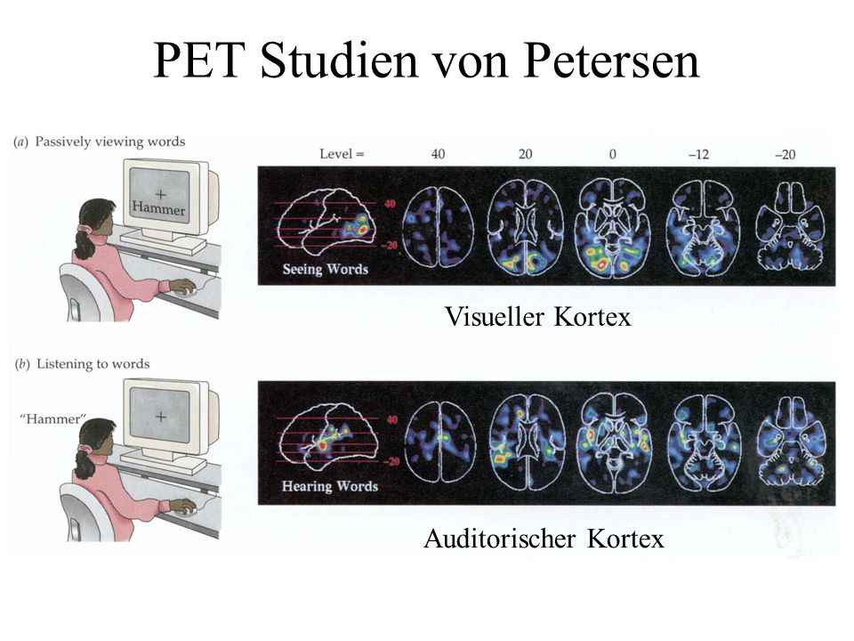 PET Studien von Petersen
