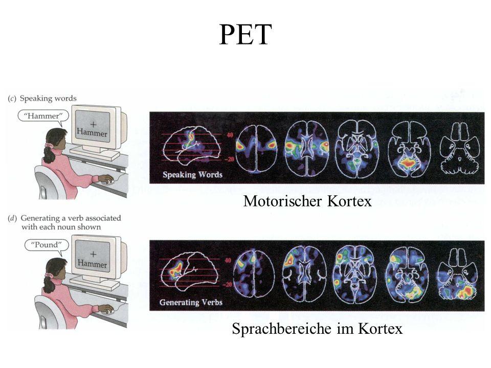 Sprachbereiche im Kortex