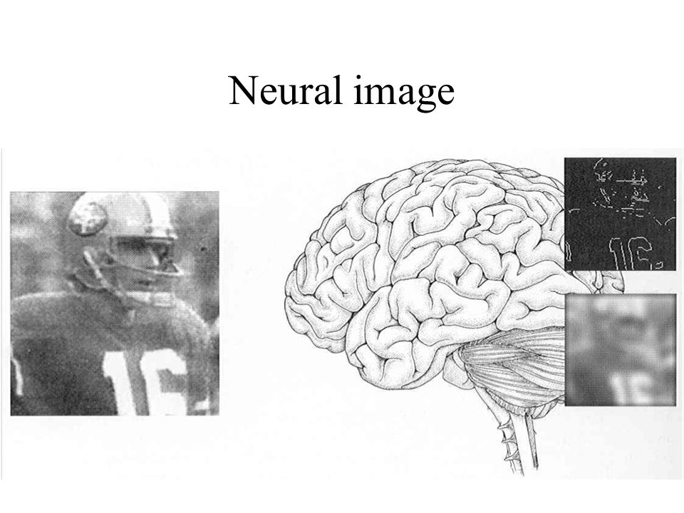 Neural image