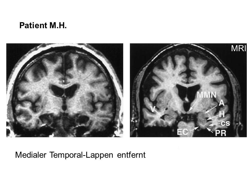 Patient M.H. MRI Medialer Temporal-Lappen entfernt