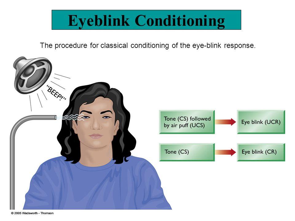 Eyeblink Conditioning