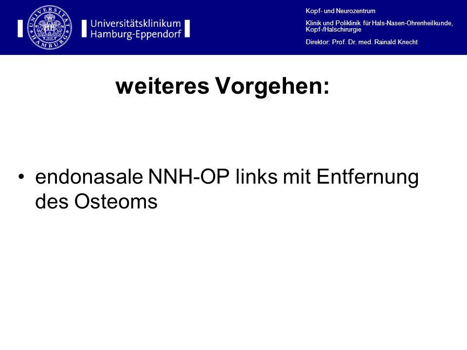 weiteres Vorgehen: endonasale NNH-OP links mit Entfernung des Osteoms