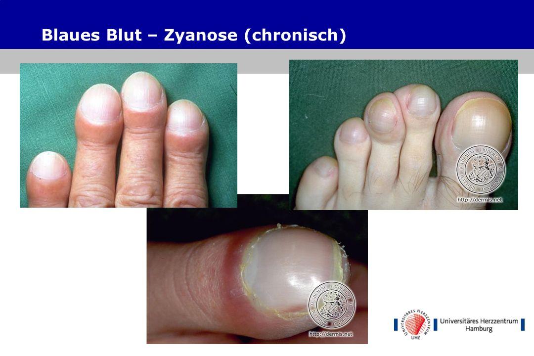 Blaues Blut – Zyanose (chronisch)