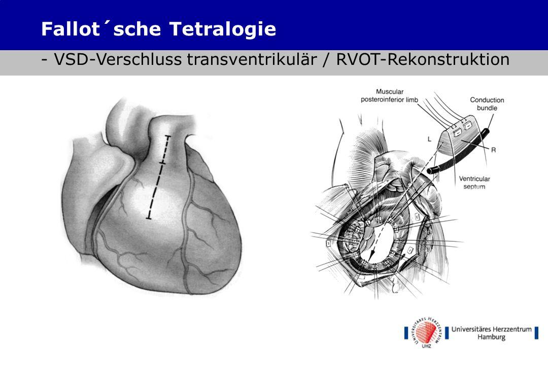 Fallot´sche Tetralogie